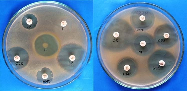 JCDR - Antibacterial activity, Kirby-bauer disc diffusion