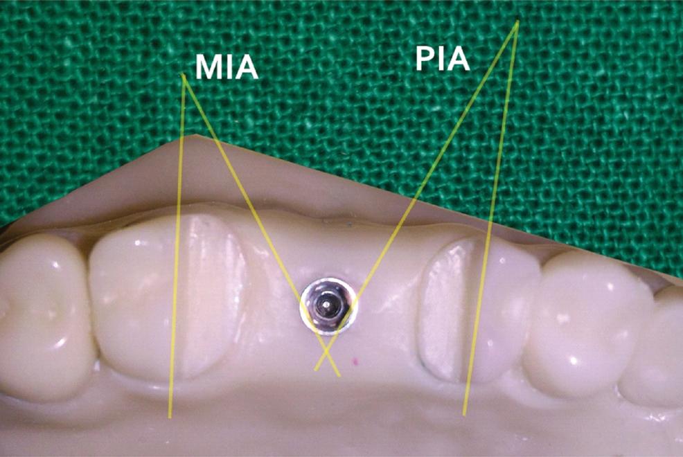 JCDR - Internal hex, Microrotation, Single implant