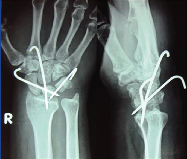 JCDR - Avascular necrosis, Carpal injuries, Dorsal approach, Wrist ...