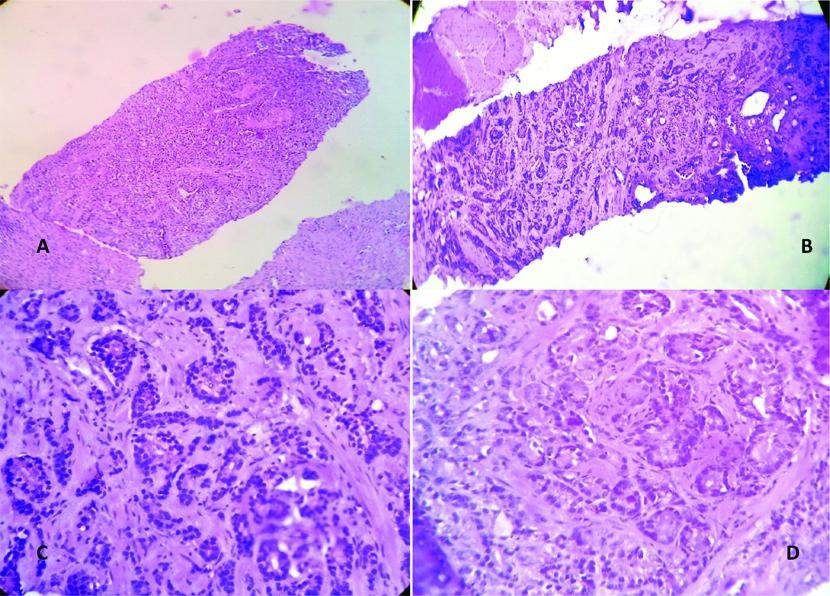 adenocarcinoma de próstata gleason 5 4 0