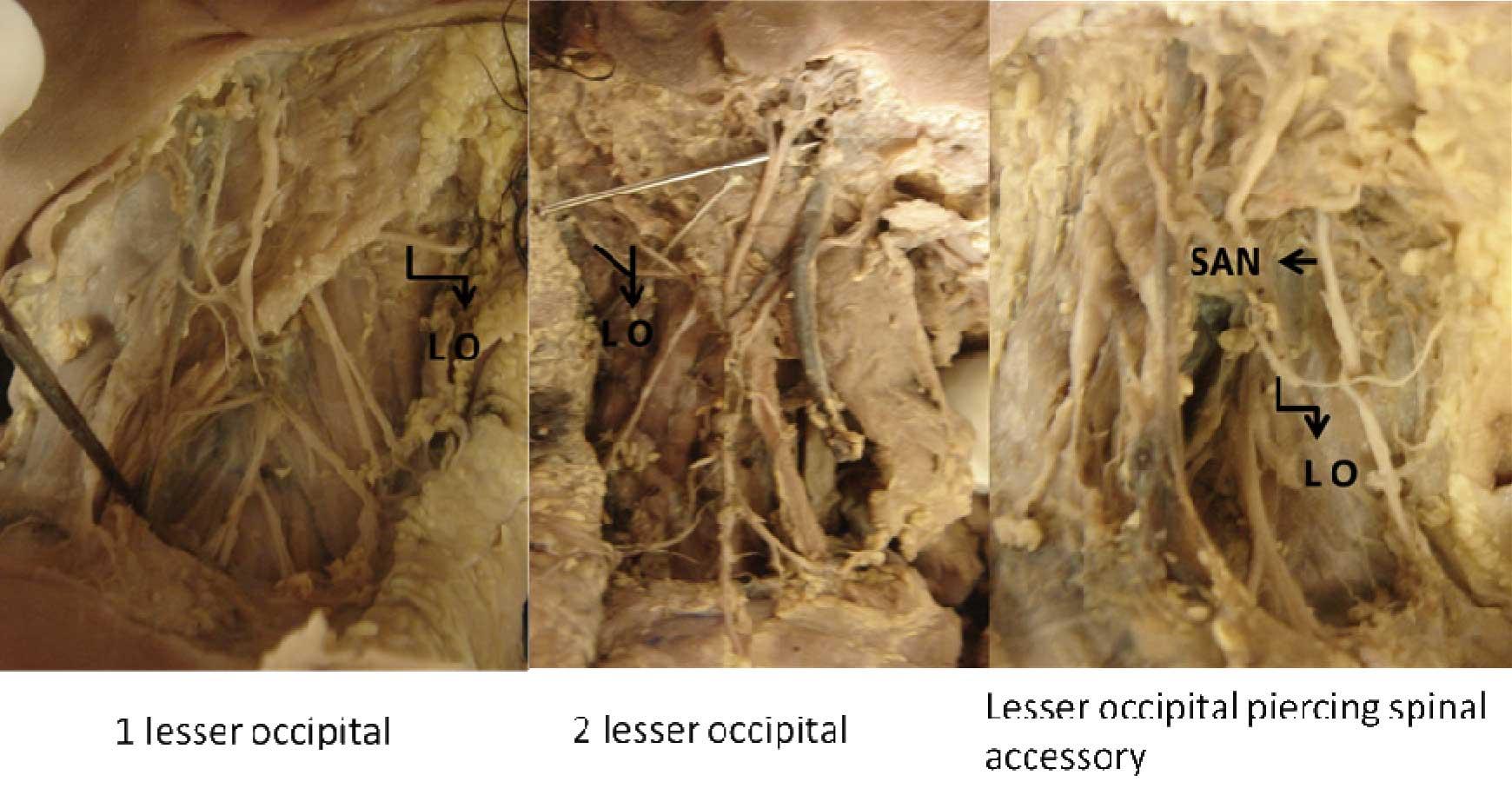 JCDR - Nerve point, Lesser occipital nerve, Great occipital nerve ...
