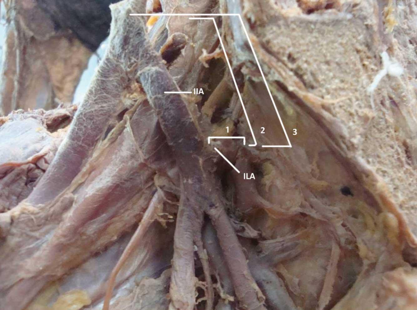 Obturator Nerve Cadaver Different parameters measuredLumbosacral Plexus Cadaver