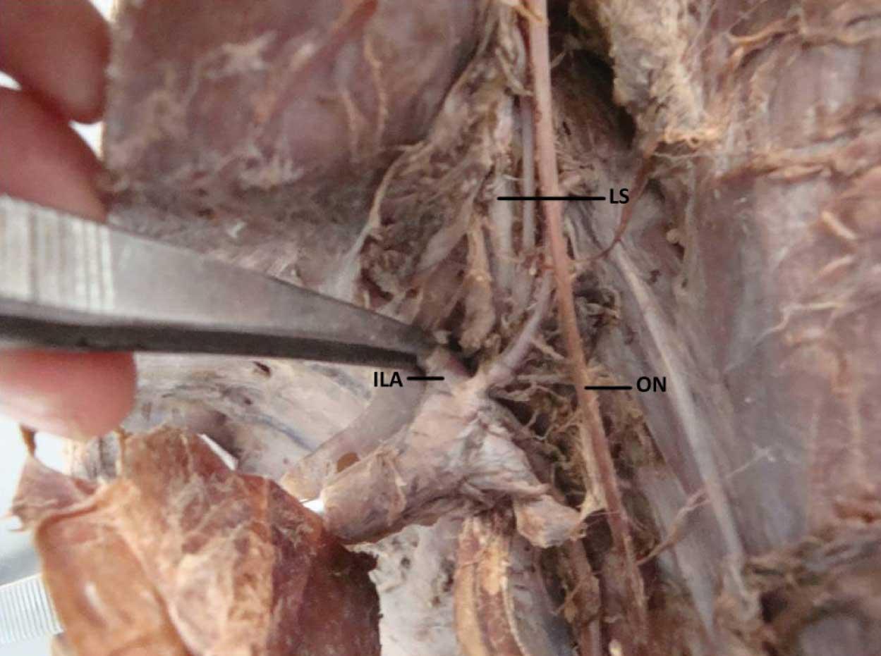 Displaying 15 gt  Images For - Obturator Nerve Cadaver   Lumbosacral Plexus Cadaver