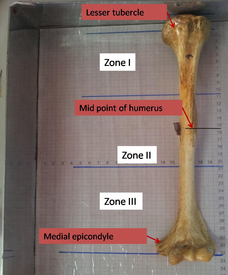 JCDR - Nutrient foramen, Humerus, Nutrient artery, Humerus fracture