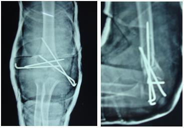 JCDR - T-Condylar fracture, Distal humerus, Adolescent, Closed ...