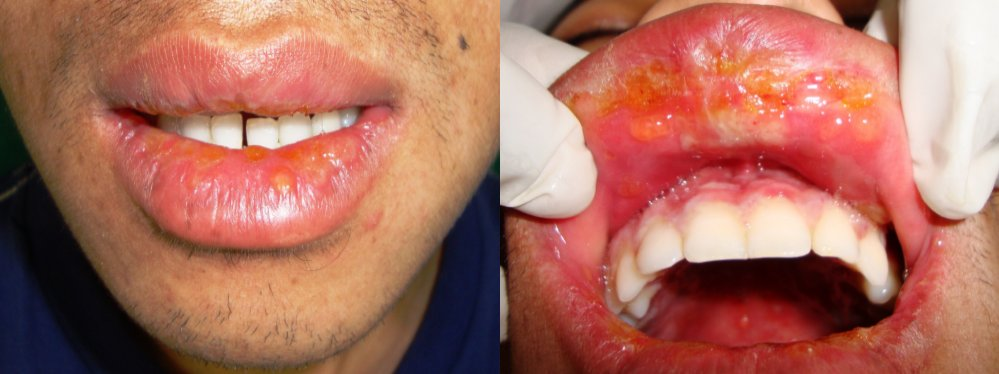 Fluid filled blister in mouth