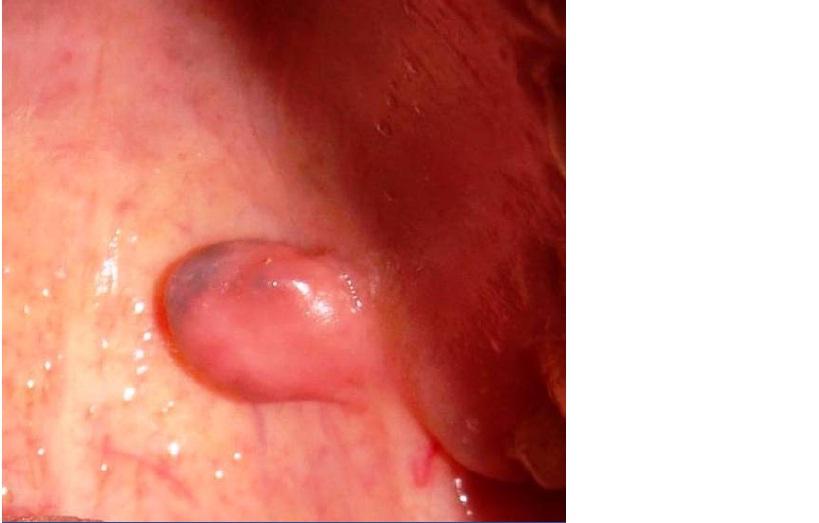 JCDR - Adipocytes, benign tumor, hard palate, lipoma