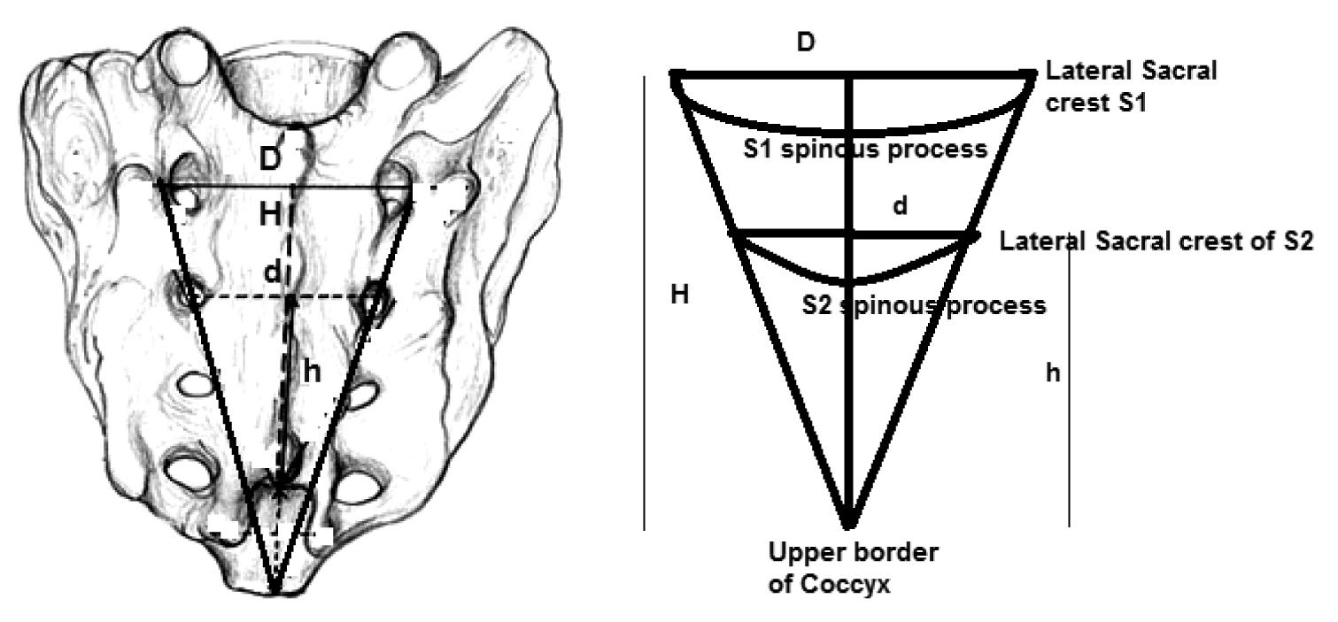 JCDR - Caudal block, Caudal space, Sacral canal