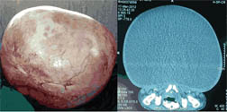 jcdr giant ovarian cyst anaesthetic implications