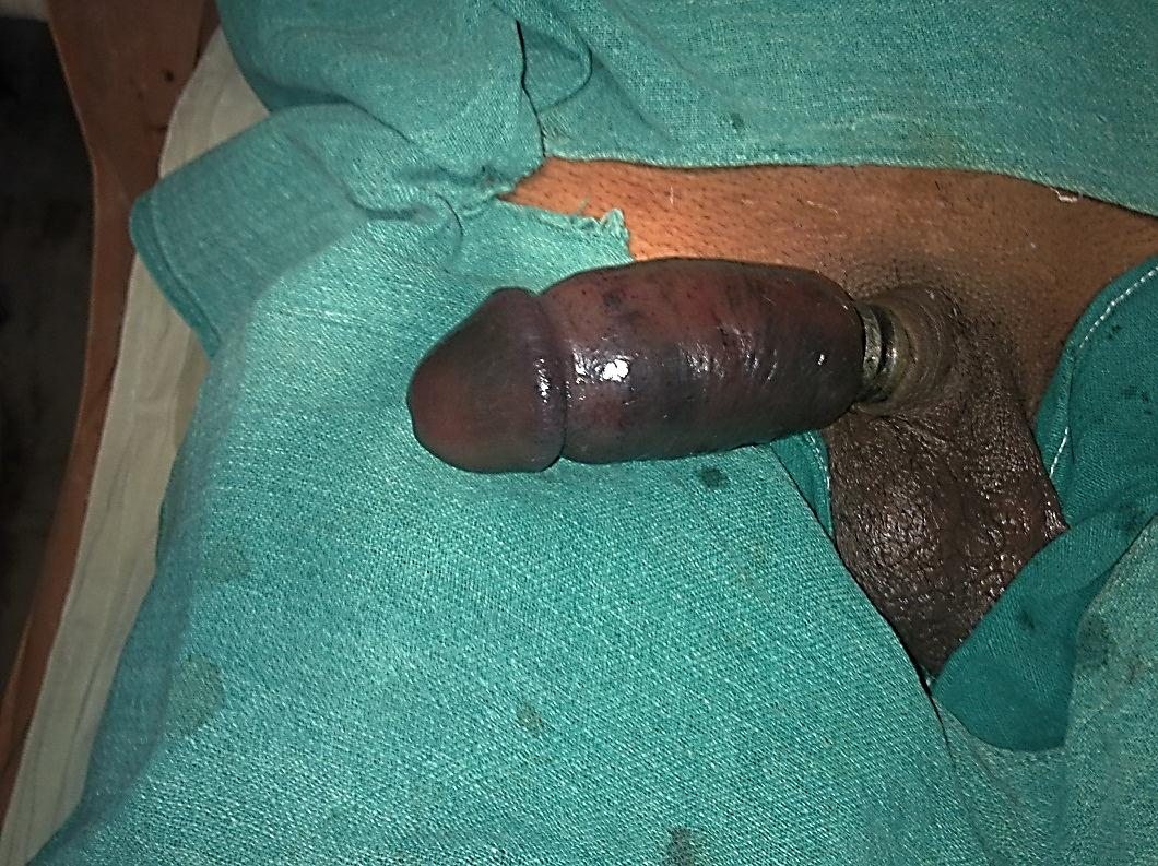 Severed Penis Man In Middlesbrough Out Of Coma
