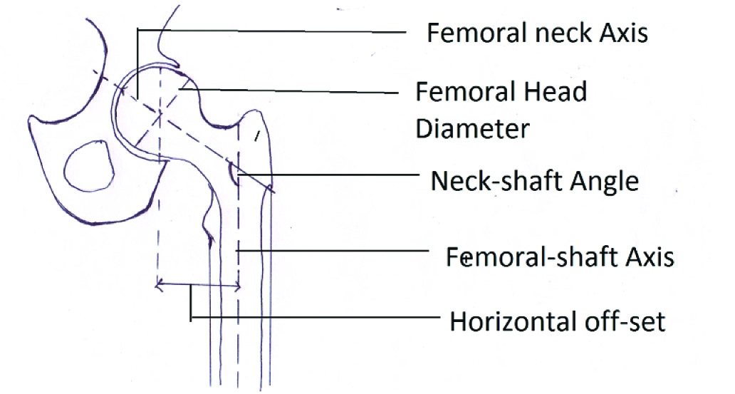 Jcdr anatomy neck shaft angle proximal femur offset total hip schematic presentation showing measurements of the parameters ccuart Gallery
