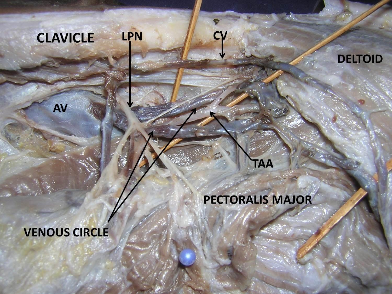 jcdr - axillary vein, cephalic vein, infraclavicular, median, Cephalic Vein