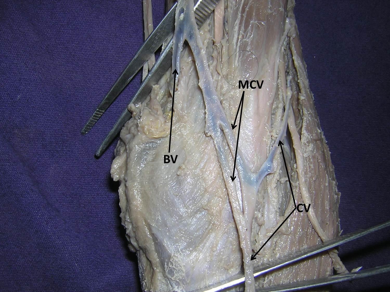 Great Saphenous Vein Cadaver