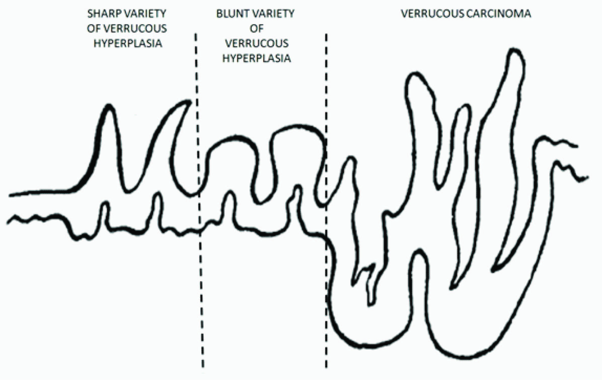Diagram showing main histological difference between vh and vc