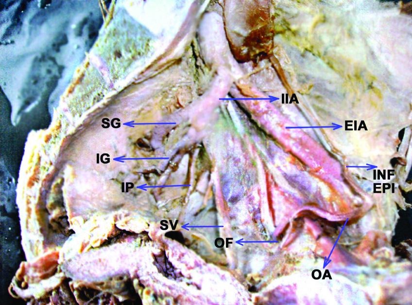 Jcdr External Iliac Artery Internal Iliac Artery Inferior