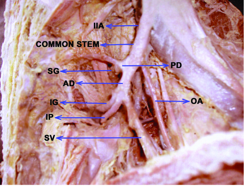 JCDR - External iliac artery, Internal iliac artery, Inferior ...