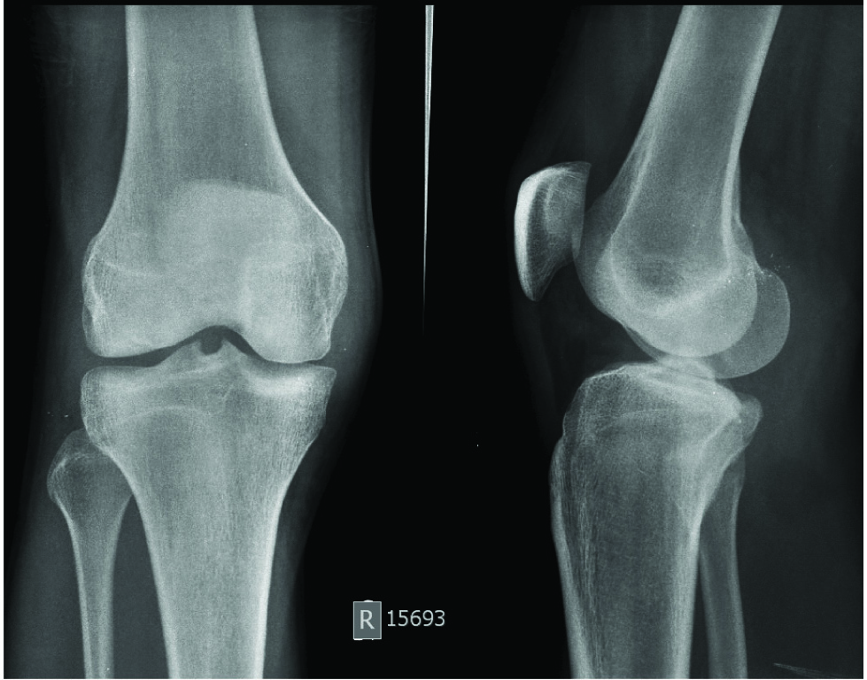 2f76a3d4c5 ... involving lateral condyles of both right femur and tibia and proximal  end of fibula suggestive of contusions. No obvious fracture is demonstrated.