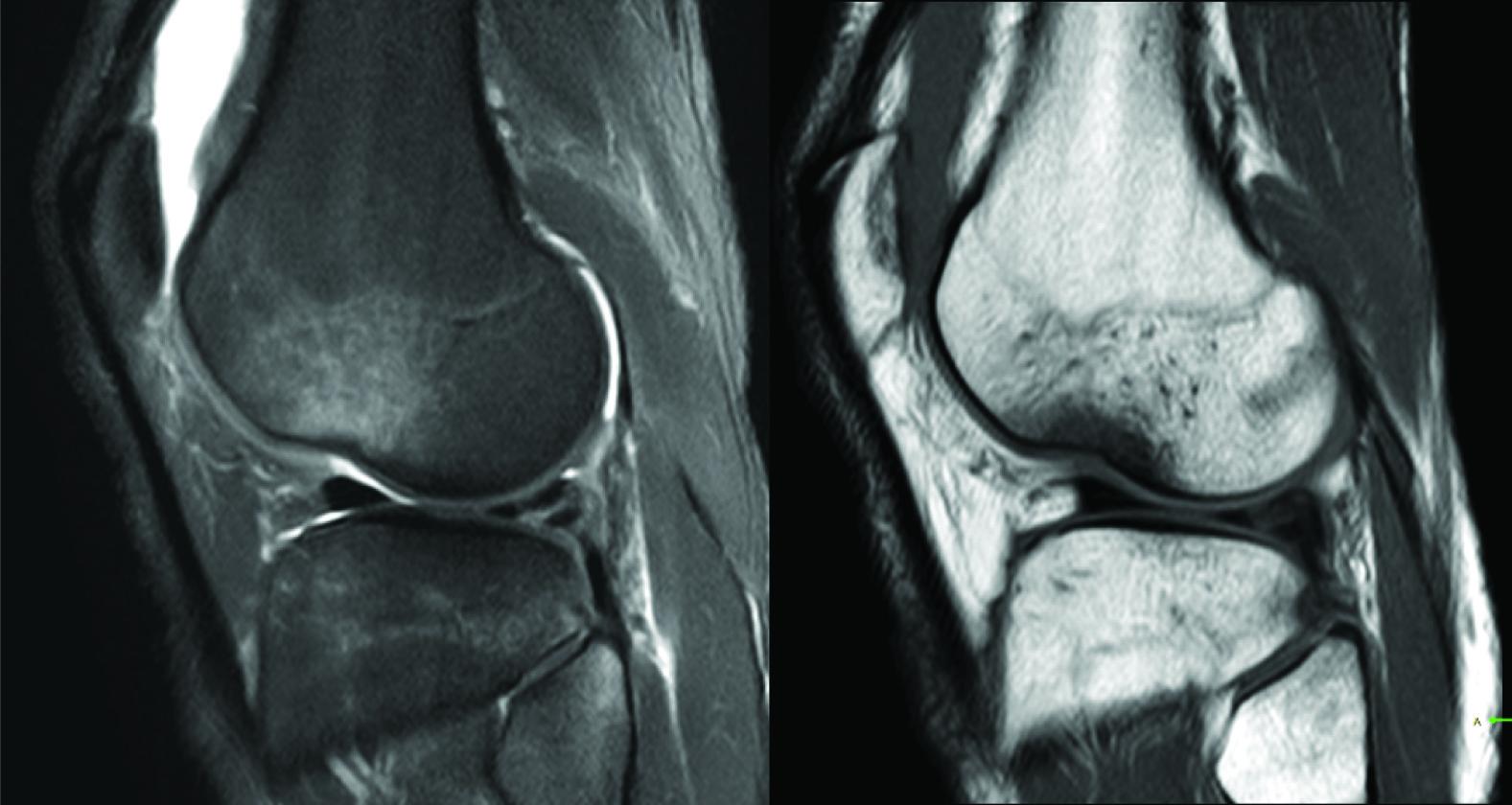 JCDR - Bone contusions, Bone marrow edema, MRI of fractures ...
