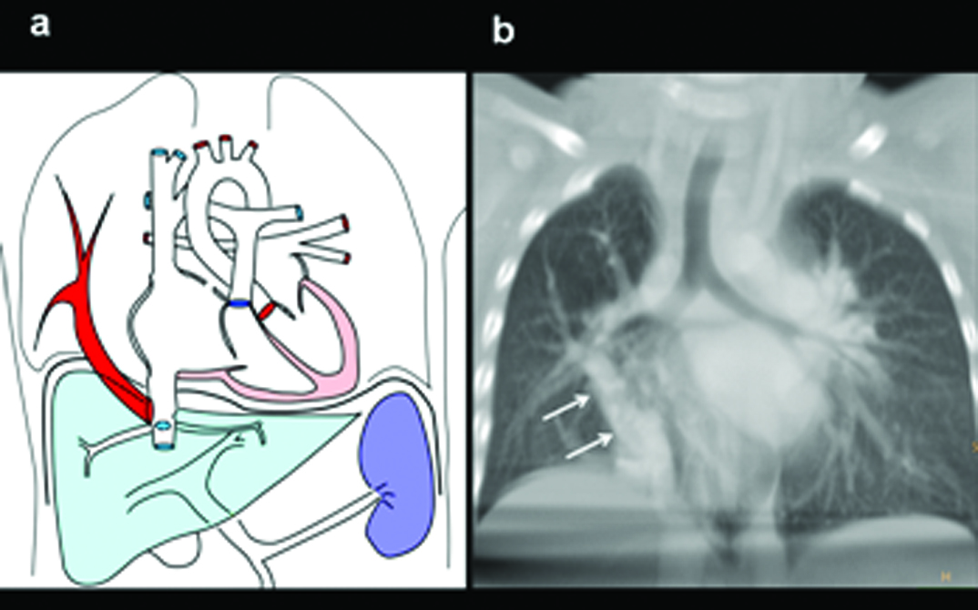 JCDR - Absent right pulmonary artery, Anomalous pulmonary venous ...