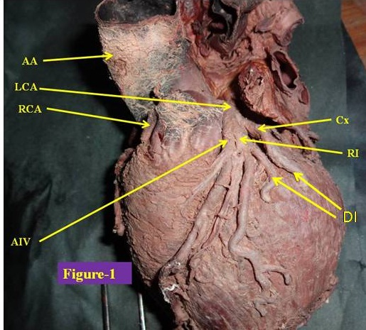 Jcdr Cardiac Diseases Surgical Interventions Trifurcation