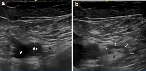 jcdr - femoral nerve, saphenous nerve, sciatic nerve, varicose veins, Muscles